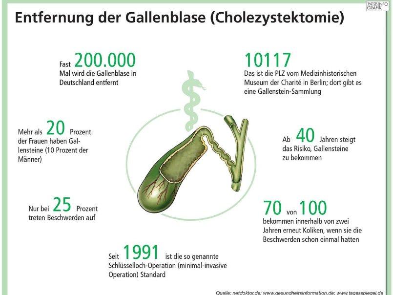 Nett Wo Die Gallenblase Entfernt Zeitgenössisch - Anatomie Ideen ...